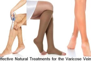 Effective Natural Treatments for the Varicose Veins