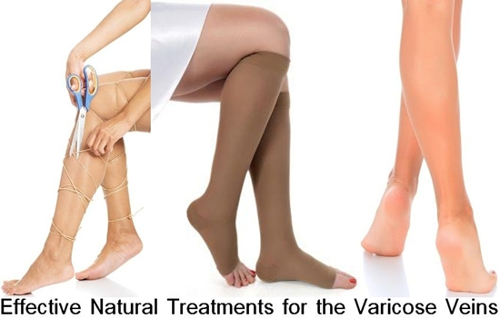 Natural Treatments for the Varicose Veins