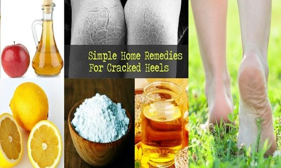 Heels Soft and Crack-less with These 5 Natural Remedies