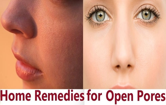 8 Must-try Natural Remedies for Large Pores