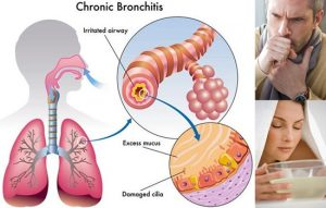 Natural Treatments for Chronic Bronchitis