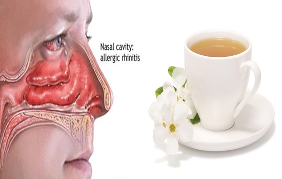 5 Effective Natural Treatments for Rhinitis