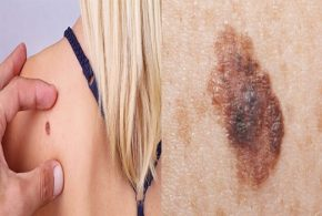 Do you have skin cancer?