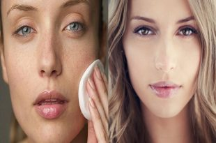 Dry skin The Solutions