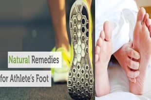 Getting Rid of Athletes Foot