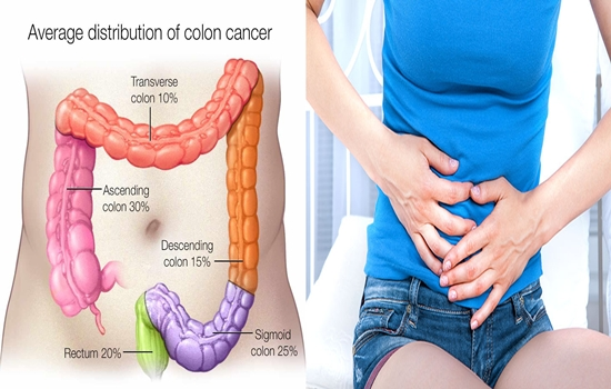 Suffer from Colon Cancer