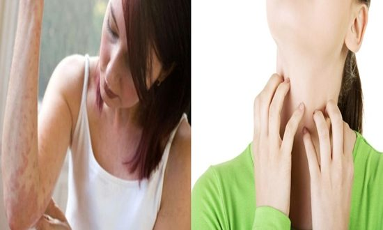Tips for natural treatment of skin rashes