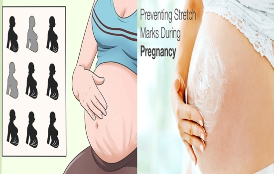 Prevent Pregnancy Stretch Marks with these Tips