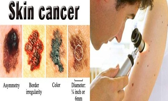 4 Facts you should know About Skin Cancer