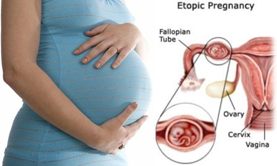 Helpful Information about Ectopic Pregnancy - Pregnant Women