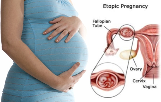 Helpful Information about Ectopic Pregnancy