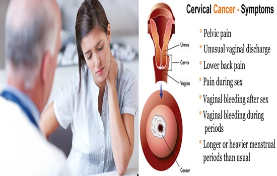 5 warning symptoms of cervical cancer - cancer, cancer, pms symptoms, Skeleton
