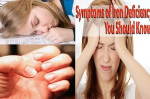 7 Symptoms of Iron Deficiency