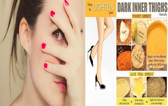 Amazing Home Remedies To Whiten Dark Inner Thighs