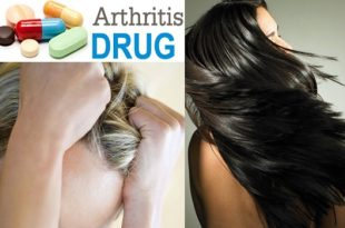 Arthritis Drug Helps People Regrow Hair, More Cases Reported