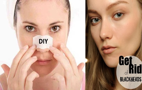 Home Remedies To Get Rid of Blackheads Quickly