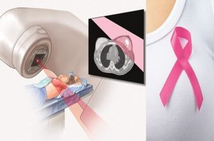 Intraoperative Radiation Therapy For Breast Cancer0
