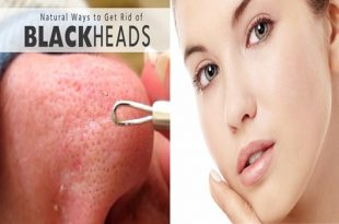 Simple Remedies to Get Rid of Blackheads
