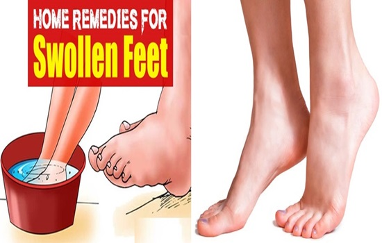 Swollen feet and how to treat them naturally