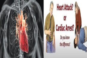The Differences Between A Heart Attack And Sudden Cardiac Arrest
