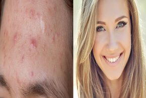 4 Home Remedies To Get Rid of Acne