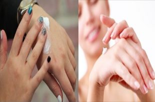 4 Tips To Treat Dry Hands
