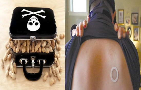 Peanut allergy treated with skin patches