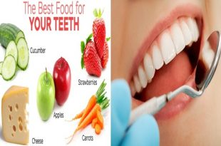5 Foods For Healthy Teeth