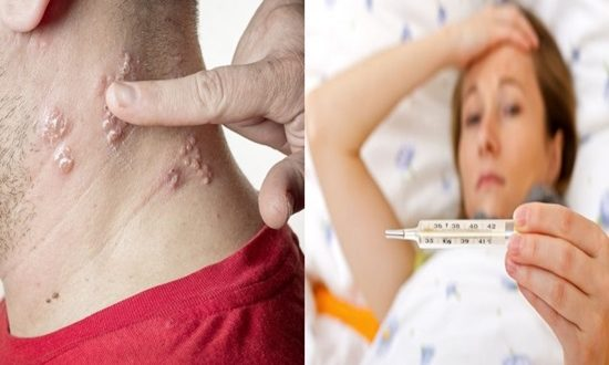 5 Warning Signs of Shingles