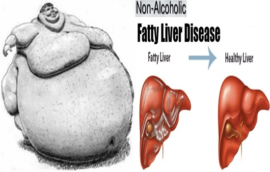 Another record for the analysis of non-alcoholic greasy liver infection