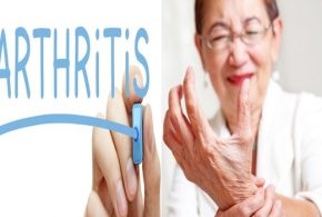 Direct switch for arthritis drugs gainful impact