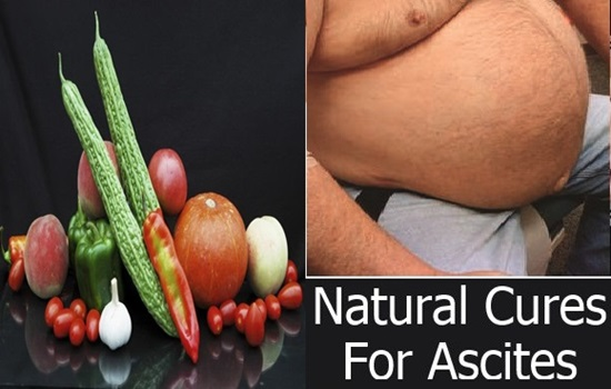 Top 5 Foods For Ascites