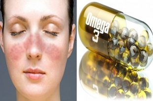 Trigger of lupus controlled by omega 3