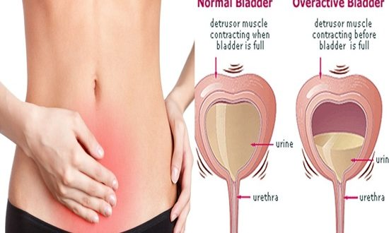Bladder disease, important fact to know