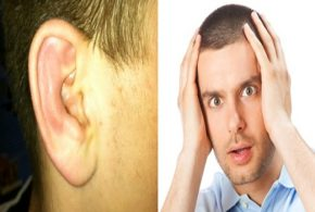 Cauliflower ear treatment options