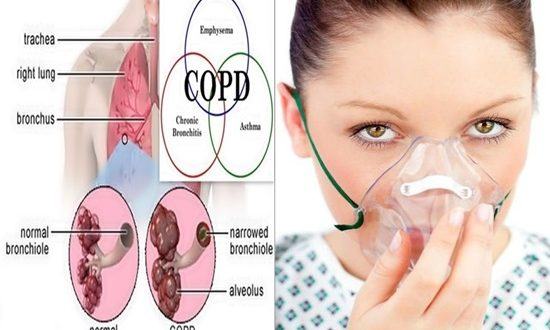 Important facts to learn about COPD hypoxia