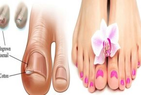 4 Home remedies To Treat An Ingrown Toenail