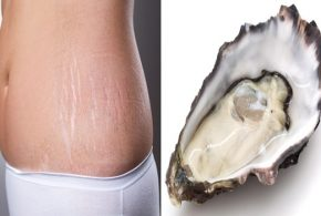 5 Foods That Help Reduce Stretch Marks