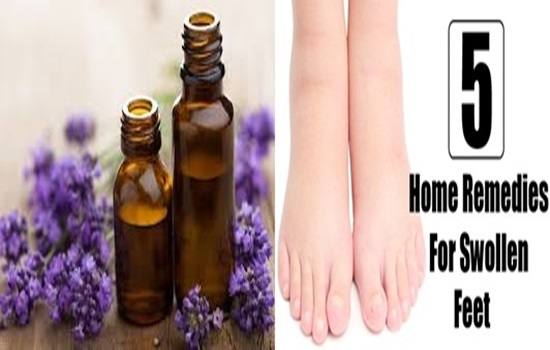 5 Home Remedies for Swollen Feet