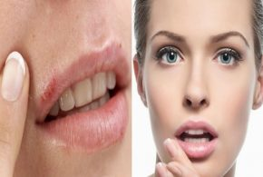 5 Things Your Lips Say About Your Health