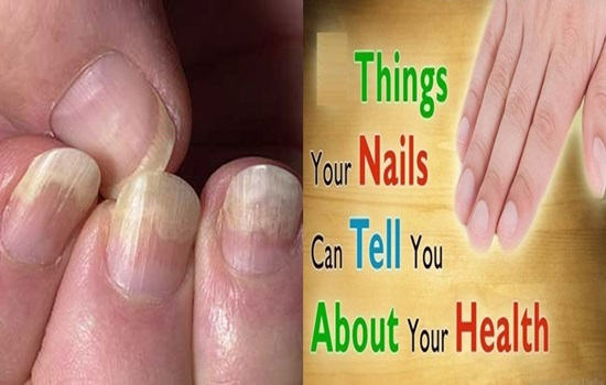 6 Things Your Nails Can Say About Your Health