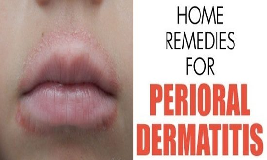 3 Natural Remedies For Perioral Dermatitis