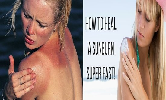 6 Things To Do After Getting a Sunburn