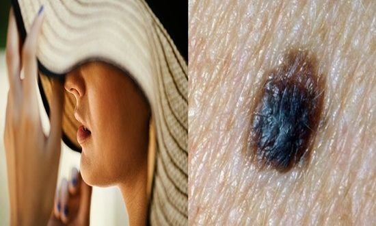 An Increase in skin cancer rates