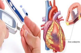 Decrease in cardiovascular sicknesses aids diabetic patients