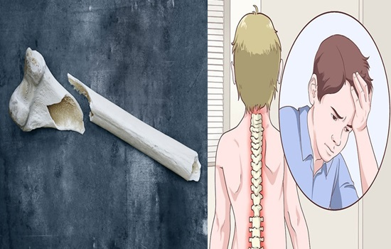 Rule for treating low bone density or osteoporosis to anticipate fractures