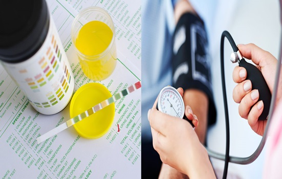 Urine test finds what makes individuals say no to blood pressure bringing down pills