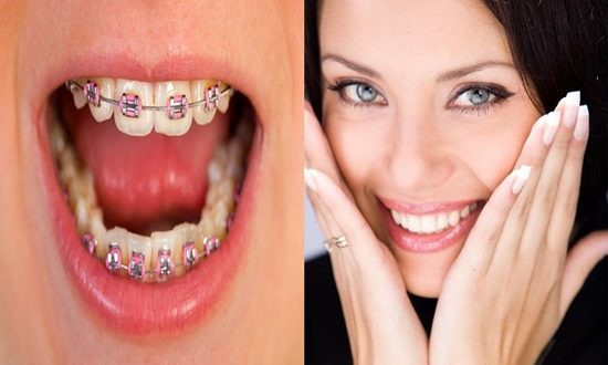4 Causes of Malocclusion You Should Be Aware Of