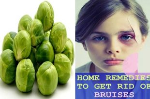 5 Natural Ways To Heal Bruises Quickly