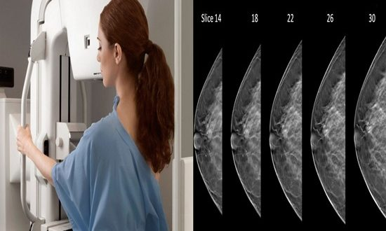 Analytic Mammograms Find More tumors and More False-Positives